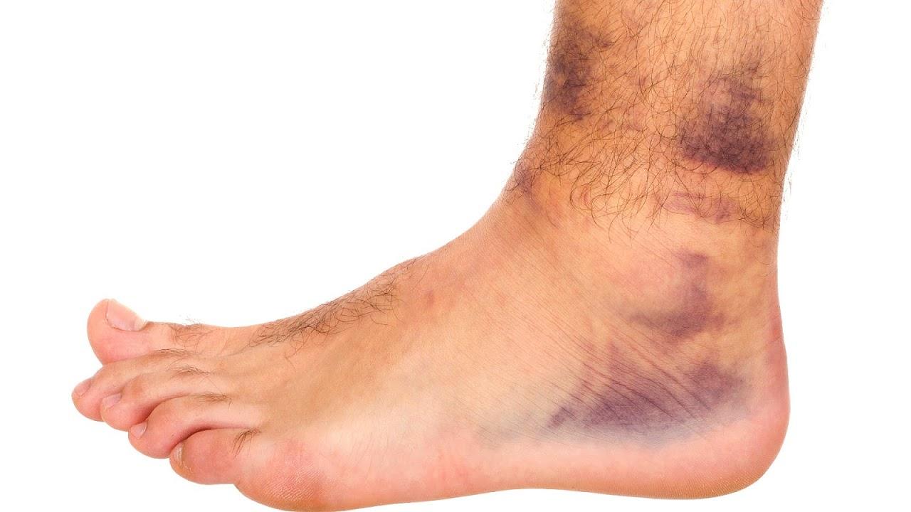 bruise contusion injury injury choices