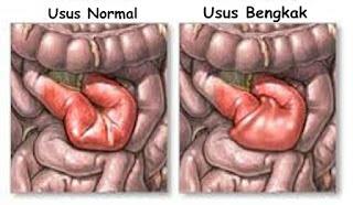 cara alami menyembuhkan usus bengkak