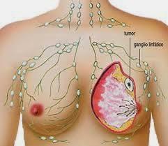 Cara Ampuh Mengatasi Kanker Payudara