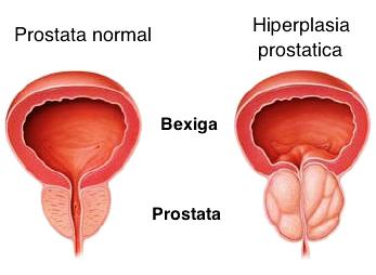 sintomas de próstata enferma