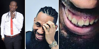 Nigerian Dentist Advises Phyno To Whiten His Brown Teeth - (See Photos)