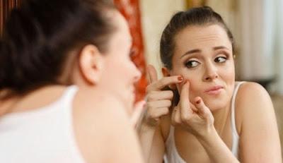 Kecantikan: Inilah Penyebab Utama Munculnya Jerawat di Wajah Anda