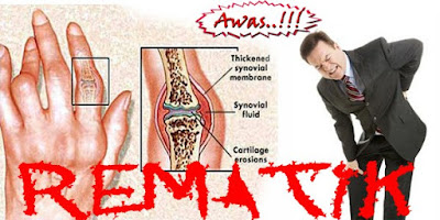 Obat rematik radang sendi herbal