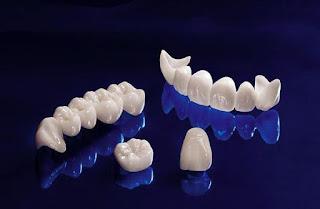 Răng sứ Emax có tính tương hợp sinh học cao