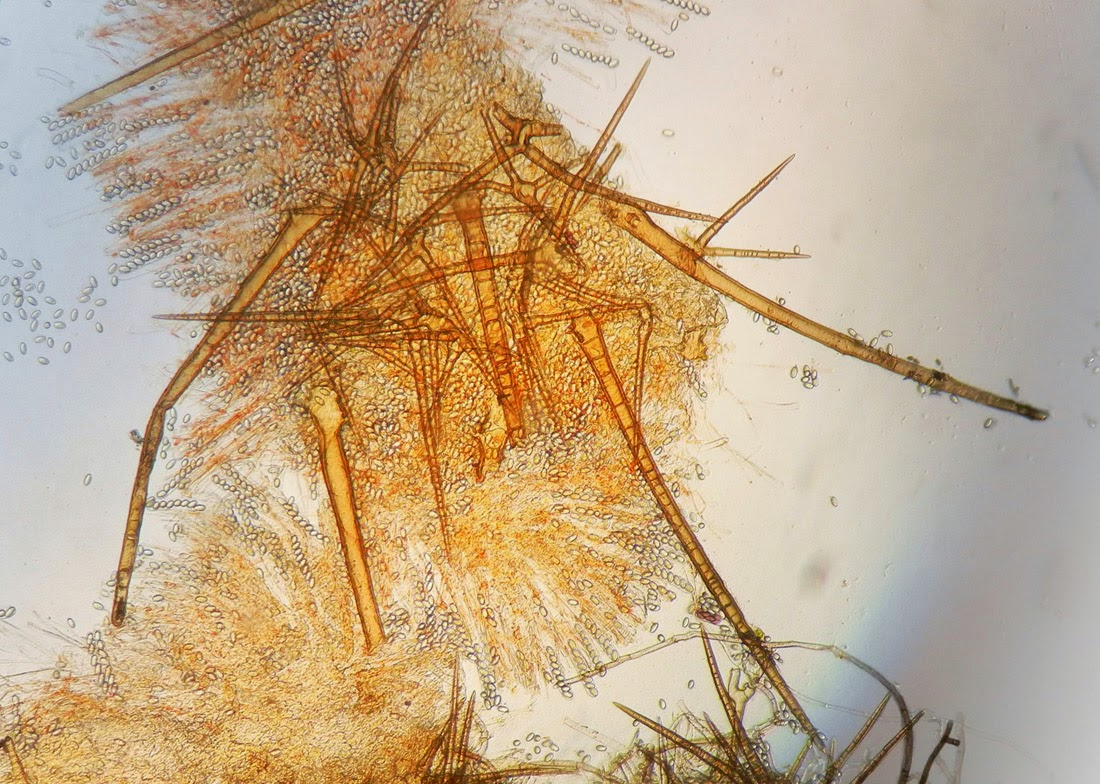micro of hairs and asci of Cheilymenia stercorea