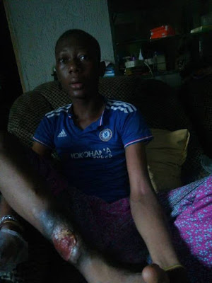 Please, Don't Let Them Cut Off My Leg –Teenager Suffering From Chronic Leg Ulcer Begs…Needs 300k For Operation