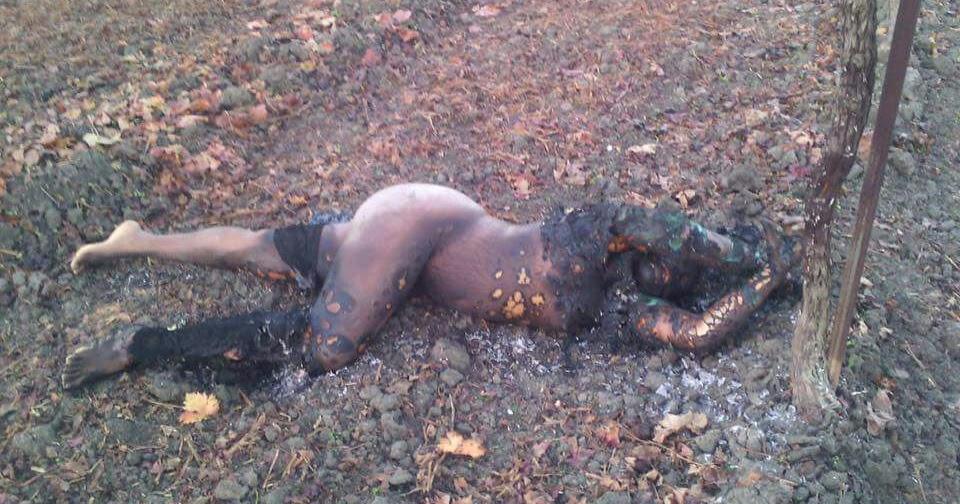 C teen girl burned death