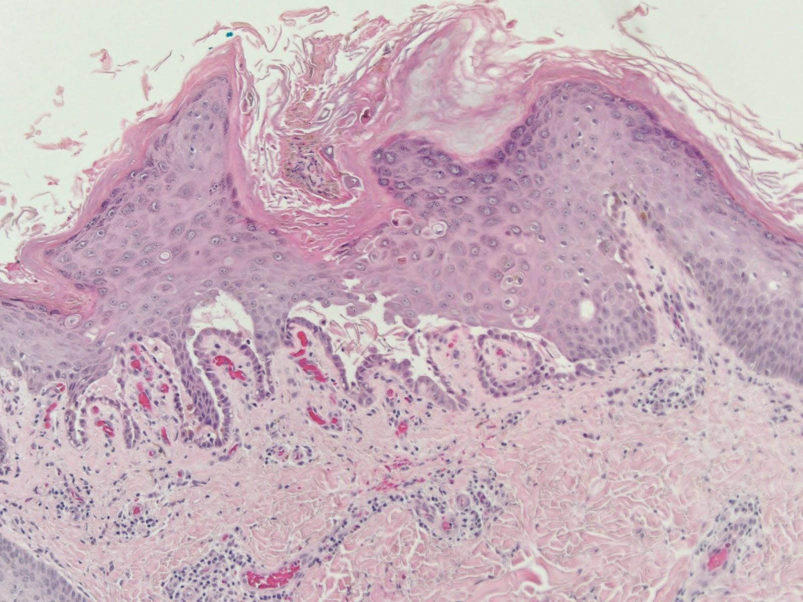 Hereditária medscape hemorrágica telangiectasia