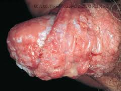penis yeast infection pictures