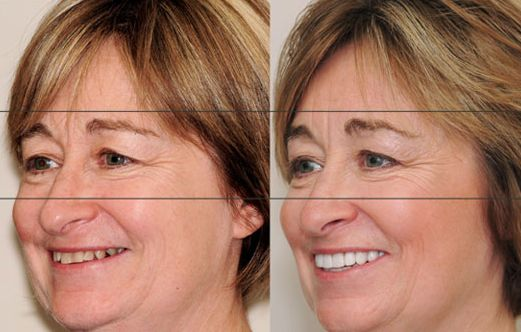 how to get rid of jowls with botox