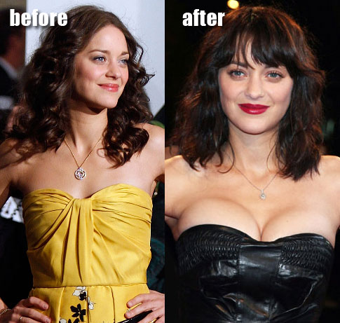 Marion Cotillard Breast Implants ~ Chatter Busy: Bollywood