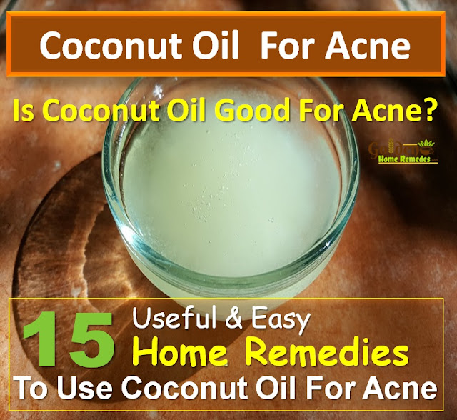 Coconut Oil For Acne, Coconut Oil Acne, Coconut Oil And Acne, Is Coconut Oil Good For Acne, How To Use Coconut Oil For Acne, How To Get Rid Of Acne, How To Get Rid Of Acne Fast, Home Remedies For Acne, Acne Treatment, How To Cure Acne, Acne Home Remedies, How To Cure Acne Fast, Acne Remedies, Home Remedies For Acne Treatment, Easy Acne Treatment, Acne Treatment, How To Treat Acne Fast