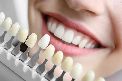 Làm gì khi bọc răng sứ bị cộm