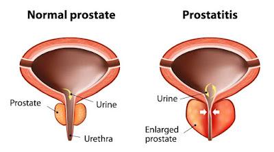 Obat Herbal Untuk Mengobati Pembesaran Prostat