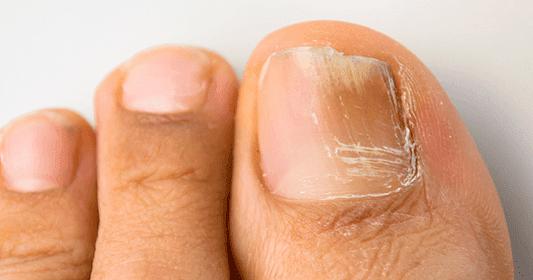 El preparado para el tratamiento del hongo de las uñas la crema