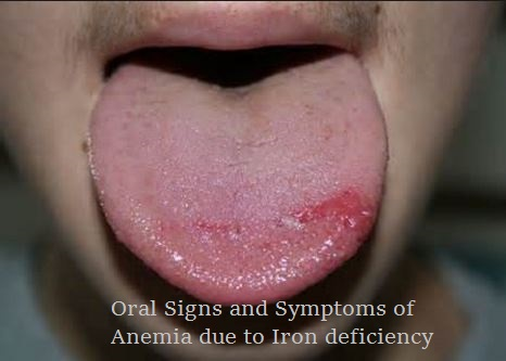 What Is Anemia ? Syptoms Of Anemia,Causes And Treatment