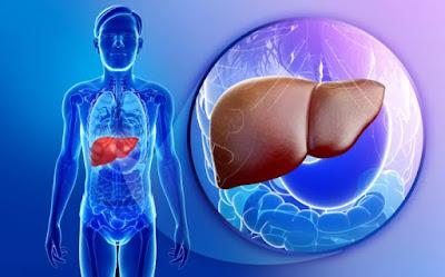 Cara Mengobati Liver Bengkak Tanpa Operasi Secara Alami Yang Aman
