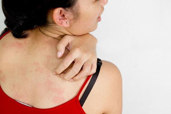 Inilah 6 Cara Mengatasi Gatal Alergi Dengan Obat Medis dan Obat Alami
