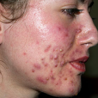 pimples under skin how to remove pimples on face