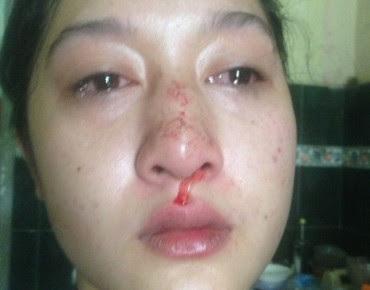 Hanya Gegara ATM Oknum Polisi ini Patahkan Hidung Istrinya