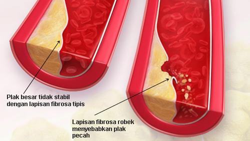 Kolesterol Tinggi Dan Penyakit Arteri Koroner