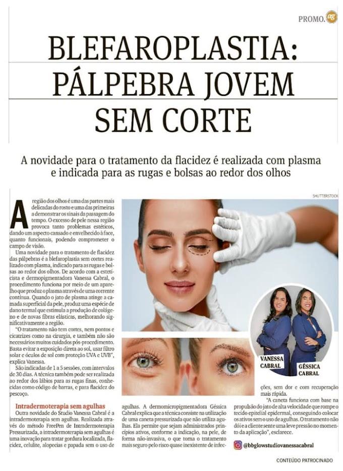 blefaroplastia: pálpebra jovem, sem corte...Vanessa Cabral , e  Jéssica Cabral