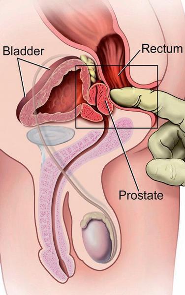 prostata dolore forte e sangue da