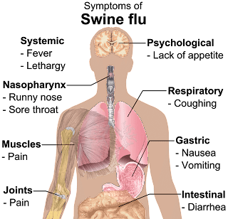 swine influenza indore
