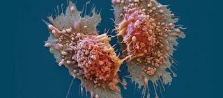 Οι επιστήμονες τον εντόπισαν - Αυτός είναι ο «σούπερ δολοφόνος» όλων των καρκινικών κυττάρων