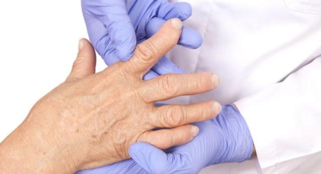 """""""Πρωτοβουλία για τους ασθενείς με αρθρίτιδα"""" θα αναπτυχθεί στο 10ο Ετήσιο Πανελλήνιο Επιστημονικό Συνέδριο στο Πόρτο Χέλι"""