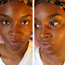 How to get black spots off your face in just 15 minutes