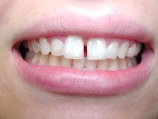 Giá niềng răng thưa hiện nay là bao nhiêu tiền?