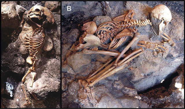A hypothesis of sudden body fluid vaporization in the 79 AD victims of Vesuvius