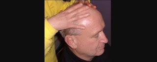 Remedio para la Alopecia
