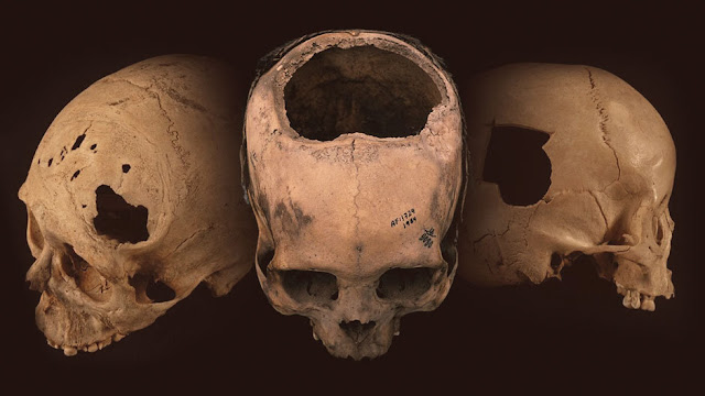 Holes in the head: The remarkable skill of ancient Peru's cranial surgeons