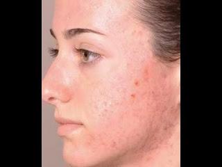 كيفية تنظيف البشرة وتصفية الوجه بالفوتوشوب