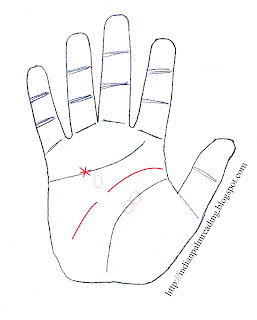 sign of blindness in palmistry