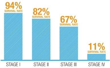 Stage 4 Colon Cancer Survival Rate Percentage