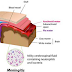 Apa Gejala, sebab dan Pencegahan Penyakit Meningitis. Anda harus baca