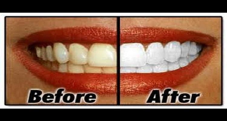 وصفة مدهشة للتخلص من تسوس الاسنان بأنفسكم و بدون الحاجة لطبيب اسنان