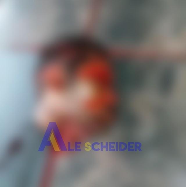 Imagens Forte: Cabeça de homem é encontrada em matagal em Colombo