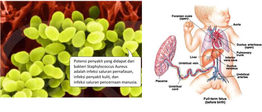 obat infeksi saluran pencernaan pada bayi yang alami dan aman
