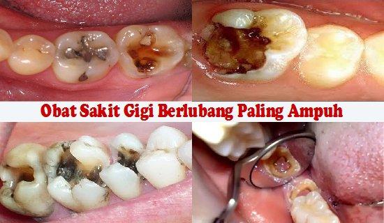 Atasi sakit gigi anda dengan menggunakan beberapa cara ini. Efektif untuk mengobati sakit gigi dengan cepat.