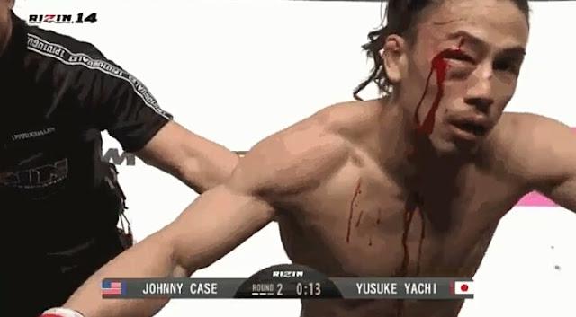 Rizin 14 : Johnny Case def. Yusuke Yachi via TKO (doctor's stoppage)