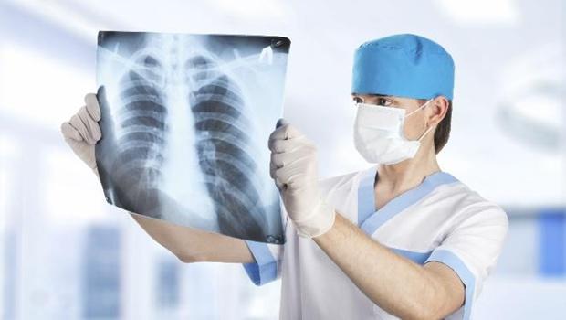Bagaimana Cara Mencegah Penyakit Kanker Paru-paru? ~ Obat ...