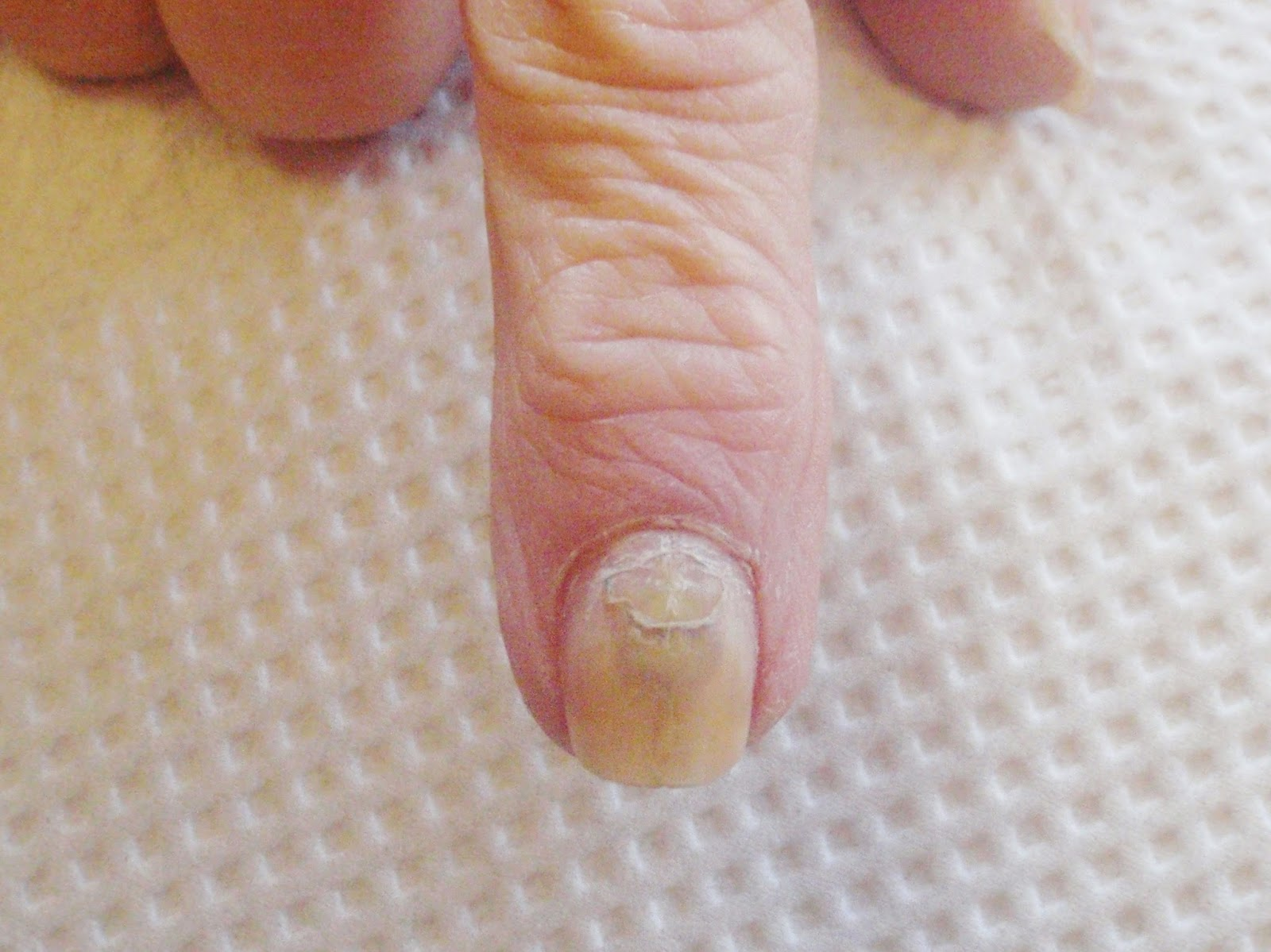 Bruised Injured Nail Is Falling Off