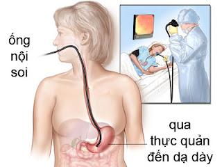 Nội soi dạ dày ống mềm là sao  Dinh-ky-bao-lau-noi-soi-da-day-mot-lan