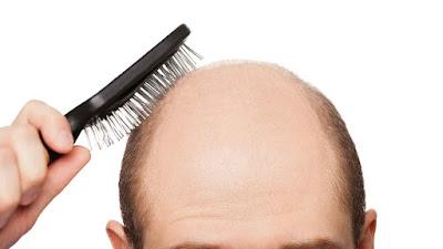 13 Cara Mengatasi Rambut Rontok Secara Alami Yang Wajib Kamu Tau !!