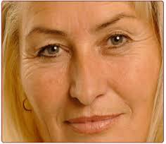 of Wrinkles