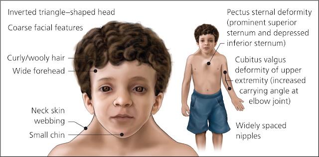 sindrom noonan imagini